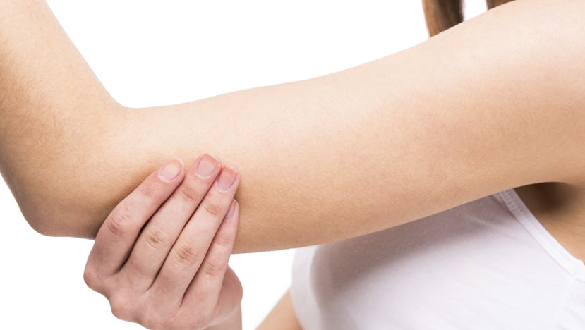 Woman holding arm due to Cubital Tunnel Syndrome
