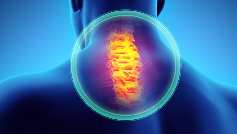 Cervical Spine Fusion