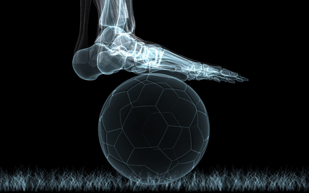 x-ray of foot on soccer ball